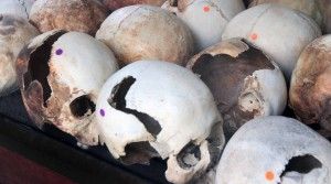 Skulls bearing evidence of the instrument used to kill the victim.