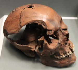 A human skull with sword or axe cuts.